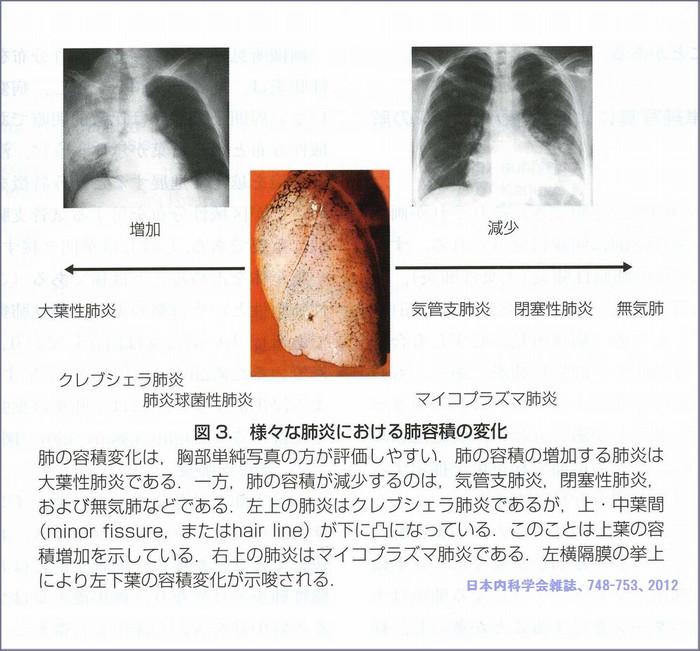 Pneumoniatype
