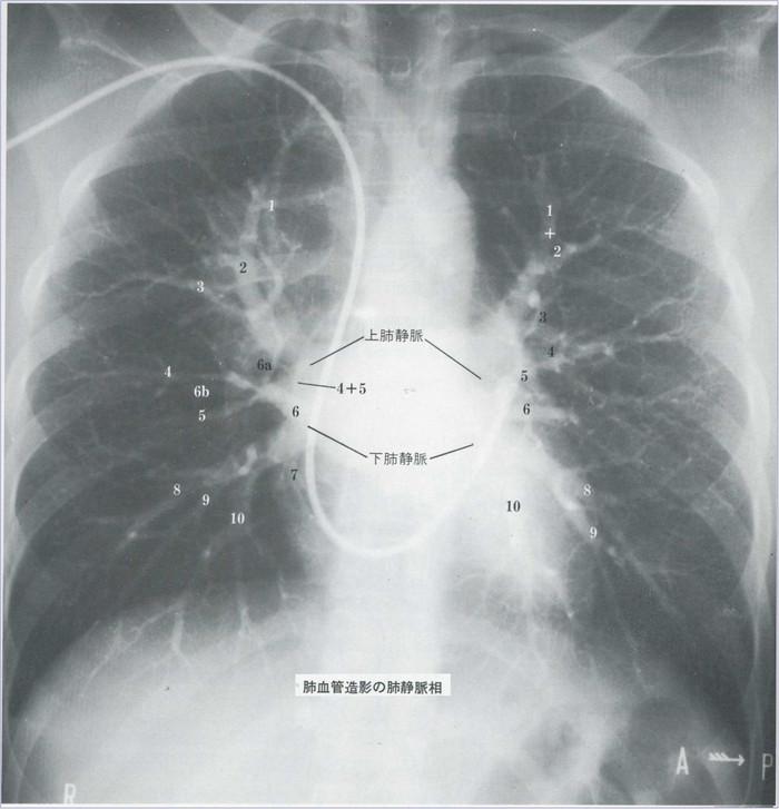 Lungvein