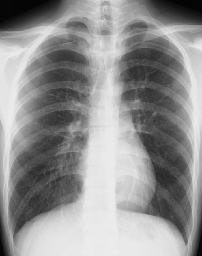 レントゲン 肺がん