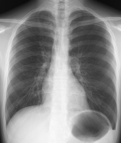 Pnemothorax_1