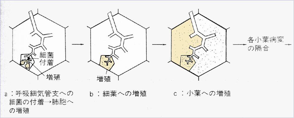 肺の構造(気管から肺胞まで): レ...