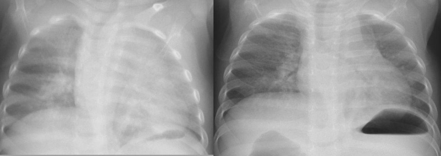 肥厚 両 胸膜 肺 尖 ~知っておきたい「健康診断の基礎知識」その72~|健康診断を活かす|草加商工会議所